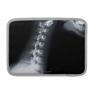 Rayo X de las vértebras del cuello incluyendo el m Funda MacBook