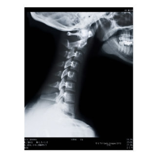 Rayo X de las vértebras del cuello incluyendo el m Postal