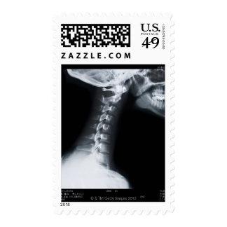 Rayo X de las vértebras del cuello incluyendo el Timbre Postal