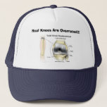 "Real Knees Are Overrated!!! Trucker Hat<br><div class=""desc"">The perfect gift for someone who gets a knee replacement... like some old codger</div>"