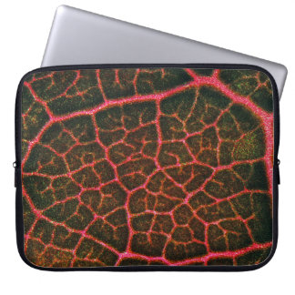 Red Cells under the microscope Computer Sleeve