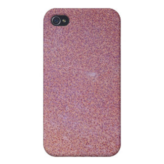 Red Rust Texture iPhone 4/4S Covers