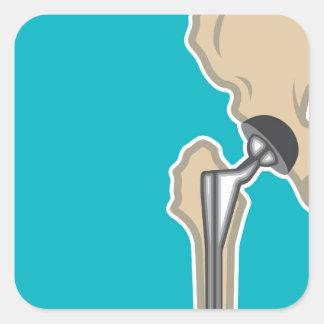 Reemplazo de la junta de cadera pegatina cuadrada