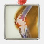 Reemplazo de la rodilla. Radiografía coloreada de Adorno Navideño Cuadrado De Metal
