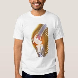 Reemplazo de la rodilla. Radiografía coloreada de Camisas