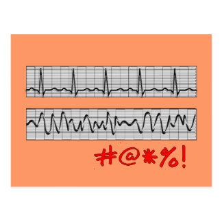 Regalos cardiacos divertidos de la tira del ritmo tarjeta postal
