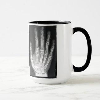 Reina en la radiografía de la mano taza