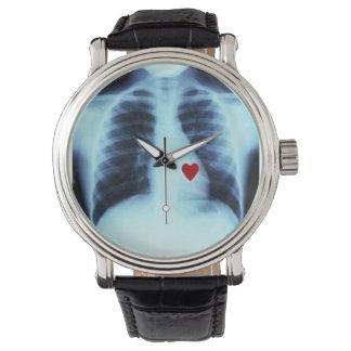 reloj del corazón de la radiografía