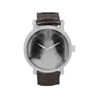 Reloj del ~ del rayo del pecho X