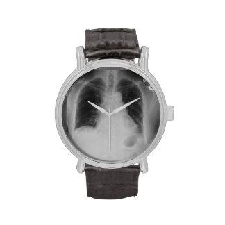 Reloj del del rayo del pecho X