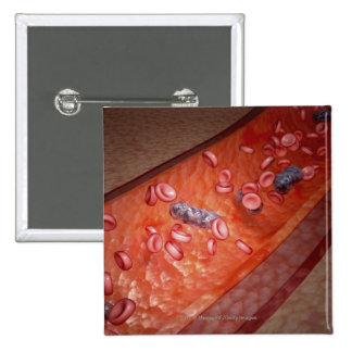 Representación microscópica de una infección de la pins