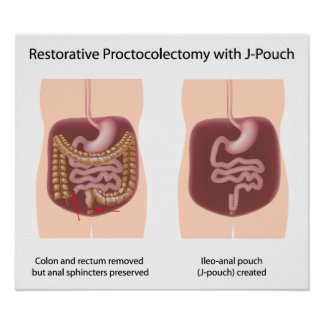 Restorative proctocolectomy surgery with j-pouch poster