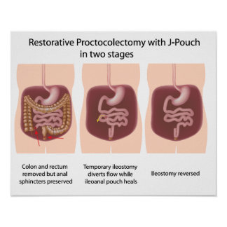 Restorative proctocolectomy with j-pouch 2 stages poster