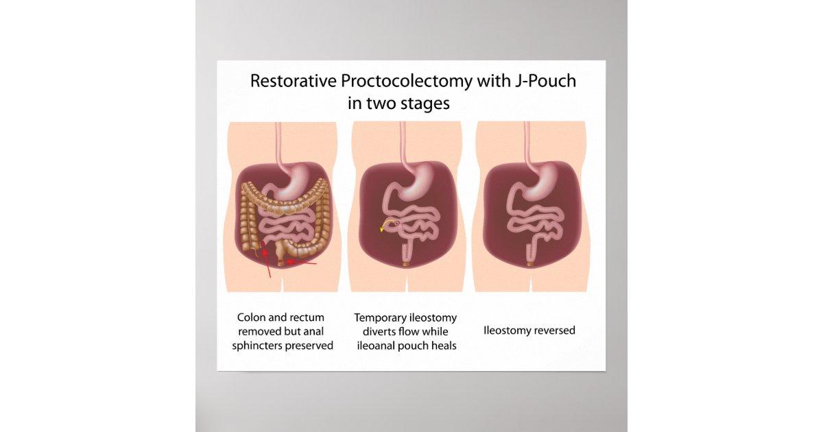 Restorative proctocole...J Pouch