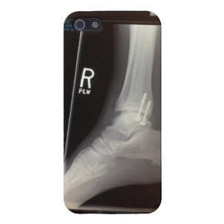 result of a fall cover for iPhone 5