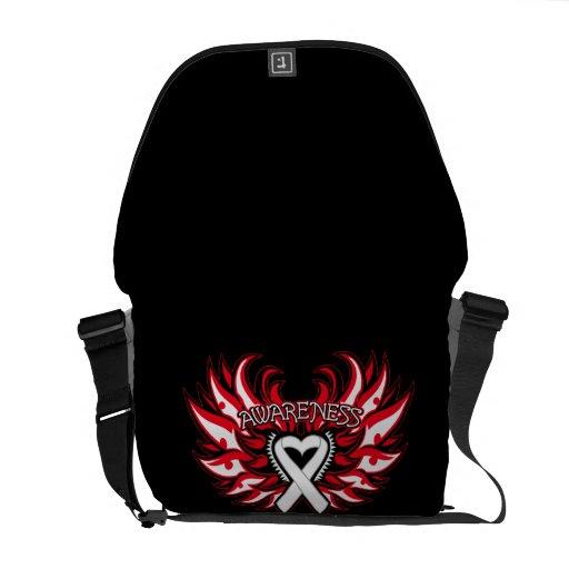 Retinoblastoma Awareness Heart Wings Commuter Bag