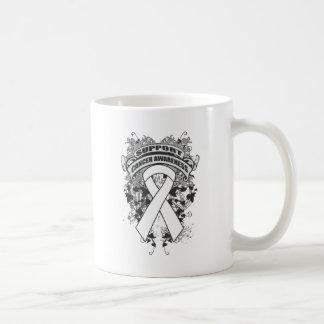 Retinoblastoma Cancer - Cool Support Awareness Classic White Coffee Mug