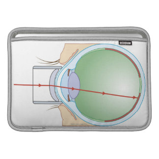 Retinopathy MacBook Air Sleeve