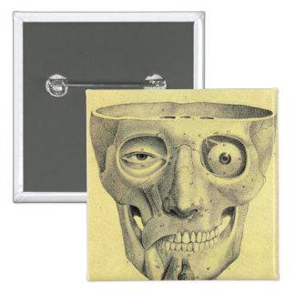 Retro Vintage Kitsch Medieval Skull Illustration 2 Inch Square Button