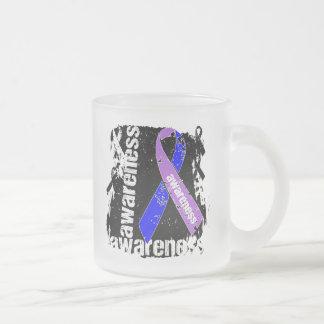 Rheumatoid Arthritis Awareness Grunge Ribbon Mug
