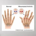 Rheumatoid arthritis of finger joints, diagram. poster