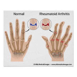 Rheumatoid arthritis of finger joints, diagram. poster