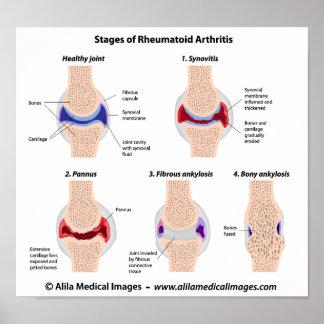 Rheumatoid arthritis  Poster
