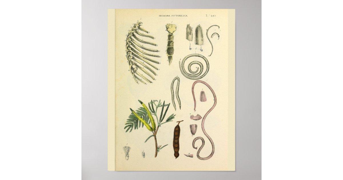 Rib Cage Sternum Anatomy Art Print   Zazzle.com
