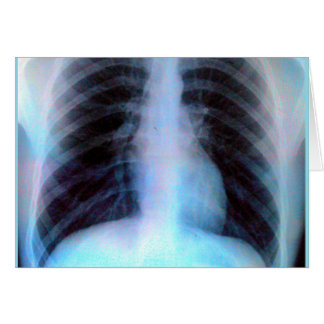 Ribcage Xray Skeleton Greeting Card
