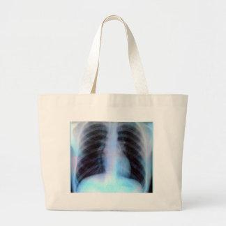 Ribcage Xray Skeleton Large Tote Bag