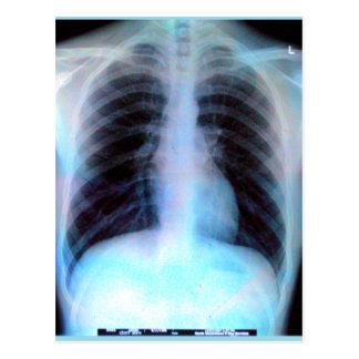 Ribcage Xray Skeleton Postcard