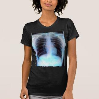 Ribcage Xray Skeleton T-shirt