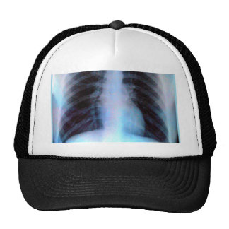 Ribcage Xray Skeleton Trucker Hat