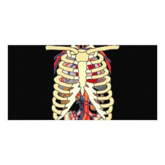 Ribs Veins Enlarged Heart Photo Card