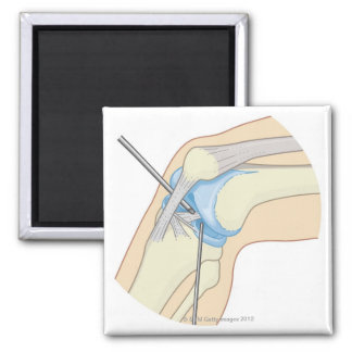 Rigid Endoscopy Procedure Magnet