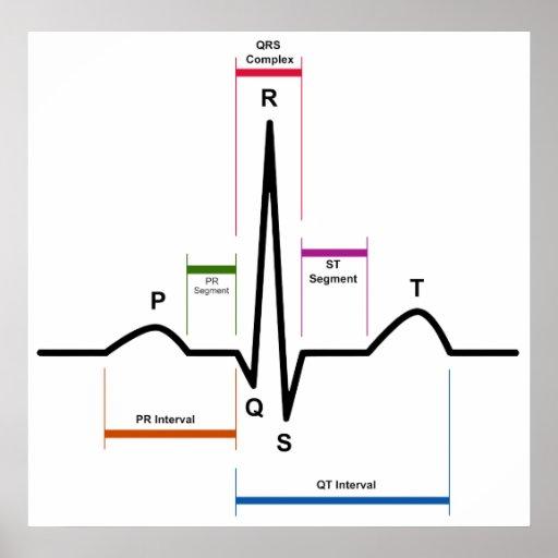 Ritmo del sino en un diagrama del electrocardiogra póster