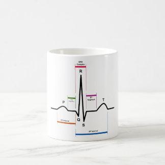 Ritmo del sino en un diagrama del electrocardiogra taza
