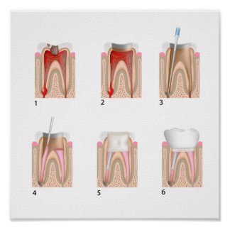 Root canal treatment Any size Poster
