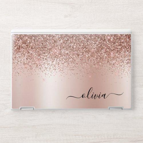 Rose Gold - Blush Pink Glitter Metal Monogram Name HP Laptop Skin