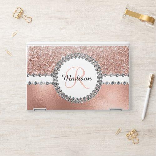 Rose Gold Glitter Diamond Personalized Monogram HP Laptop Skin