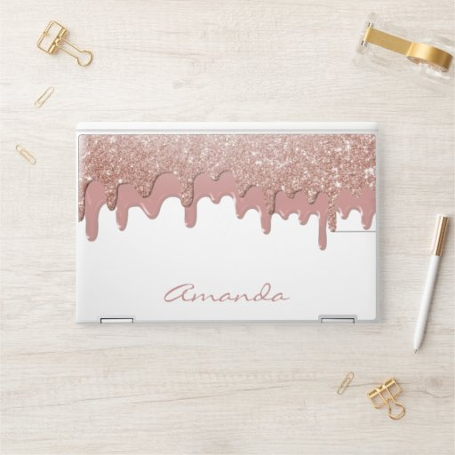 Rose Gold Glitter Drips Personalized HP Laptop Skin
