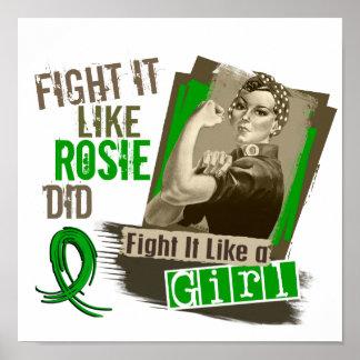 Rosie Sepia Kidney Disease Posters