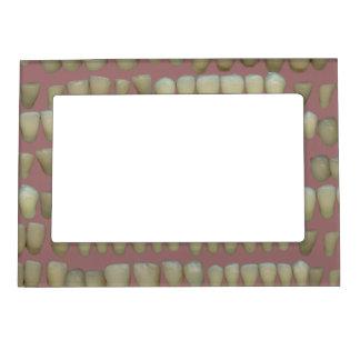 Rotten Teeth Dentist Dentistry Orthodontics Pink Magnetic Frame