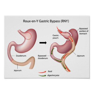Roux-en-Y Gastric Bypass surgery poster