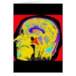 sagital MRI Greeting Card