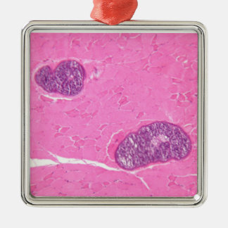 Sarcocystis Parasite in Muscle Tissue Metal Ornament