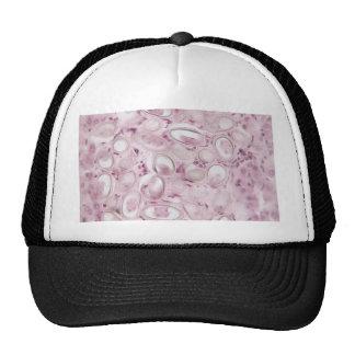 Science Parasite Trucker Hat