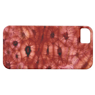 Sclerenchyma Cells from a Cherry Pit iPhone 5 Case