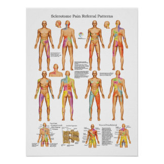 Sclerotome Visceral Pain Referral Poster