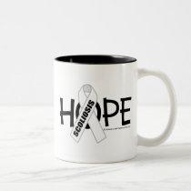 Scoliosis Hope Two-Tone Coffee Mug